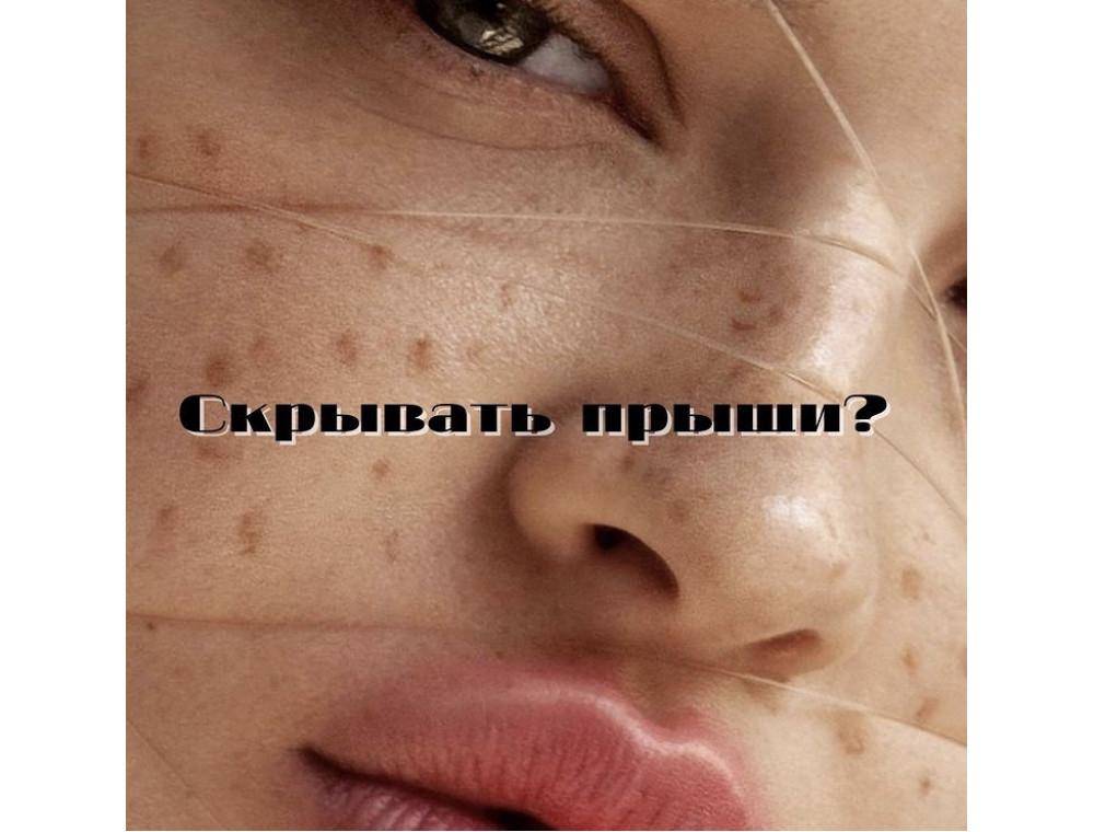 Как перестать стыдиться акне?