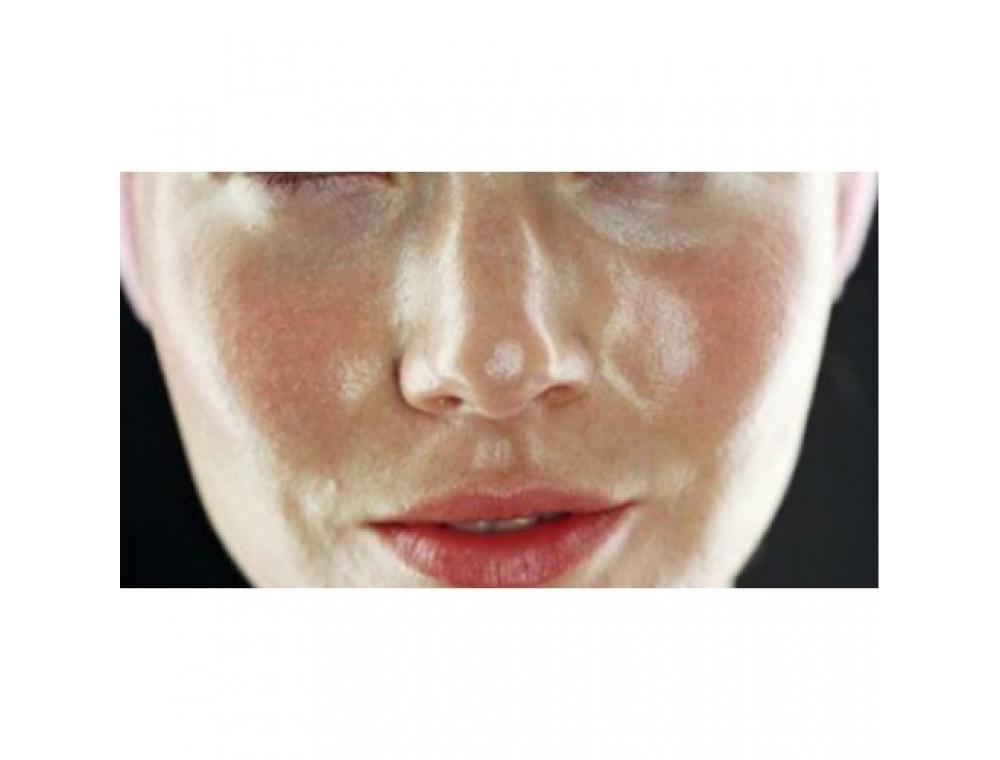 На что следует обратить внимание обладательницам жирной кожи?